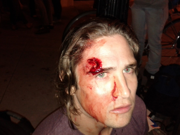 GRAPHIC PHOTO- Oakland Protester Injured By Rubber Bullet.jpg